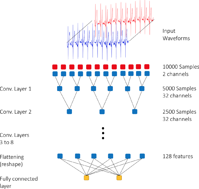 Figure 1 for Deep Learning for Cardiologist-level Myocardial Infarction Detection in Electrocardiograms