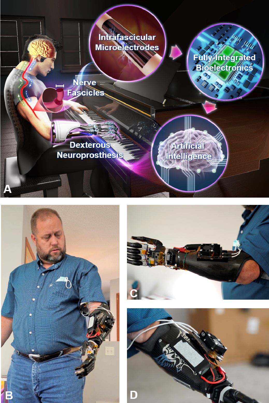 Figure 1 for A Portable, Self-Contained Neuroprosthetic Hand with Deep Learning-Based Finger Control