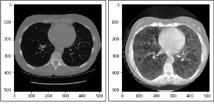 Figure 2 for Lung Cancer Detection and Classification based on Image Processing and Statistical Learning