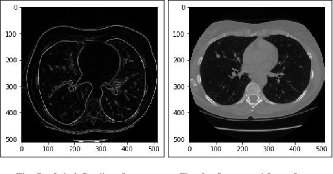 Figure 4 for Lung Cancer Detection and Classification based on Image Processing and Statistical Learning