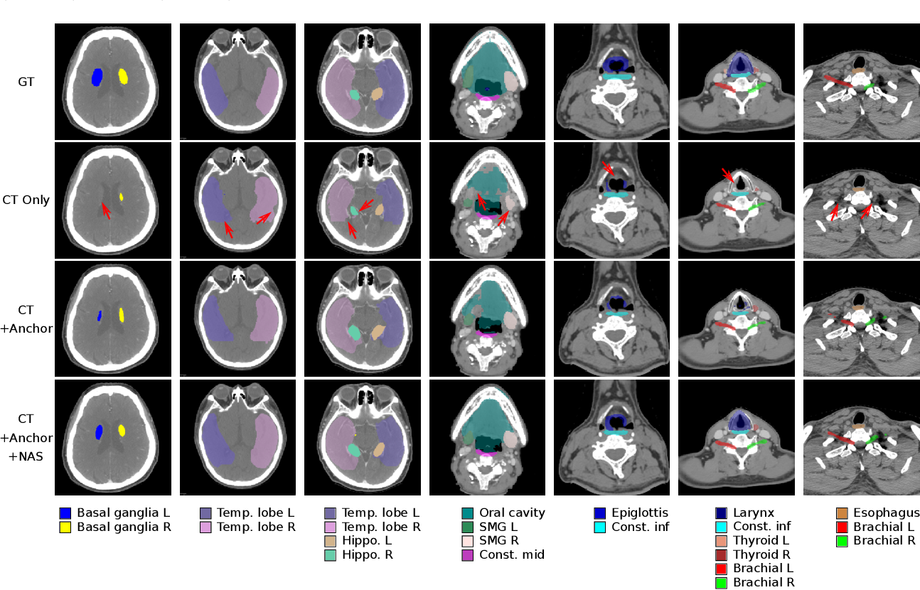 Figure 4 for Organ at Risk Segmentation for Head and Neck Cancer using Stratified Learning and Neural Architecture Search