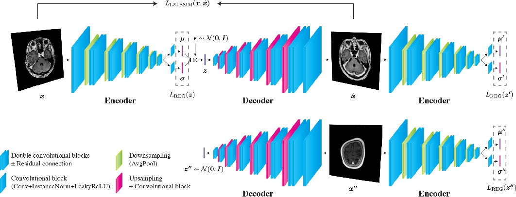 Figure 1 for Unsupervised Brain Abnormality Detection Using High Fidelity Image Reconstruction Networks