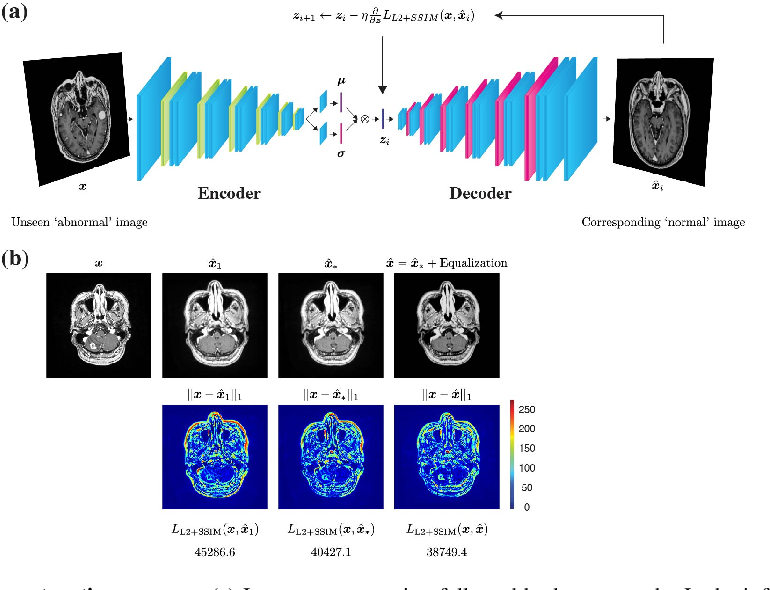 Figure 3 for Unsupervised Brain Abnormality Detection Using High Fidelity Image Reconstruction Networks