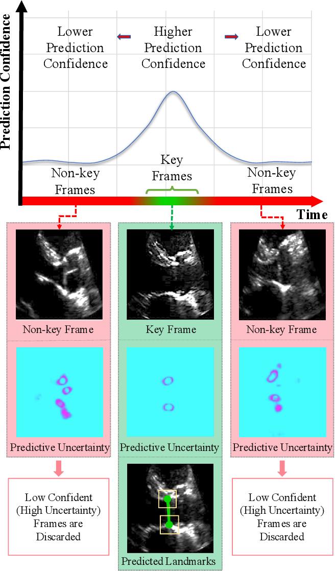 Figure 1 for U-LanD: Uncertainty-Driven Video Landmark Detection