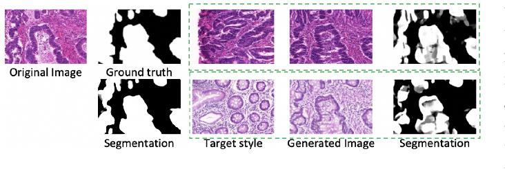 Figure 1 for Unlabeled Data Guided Semi-supervised Histopathology Image Segmentation