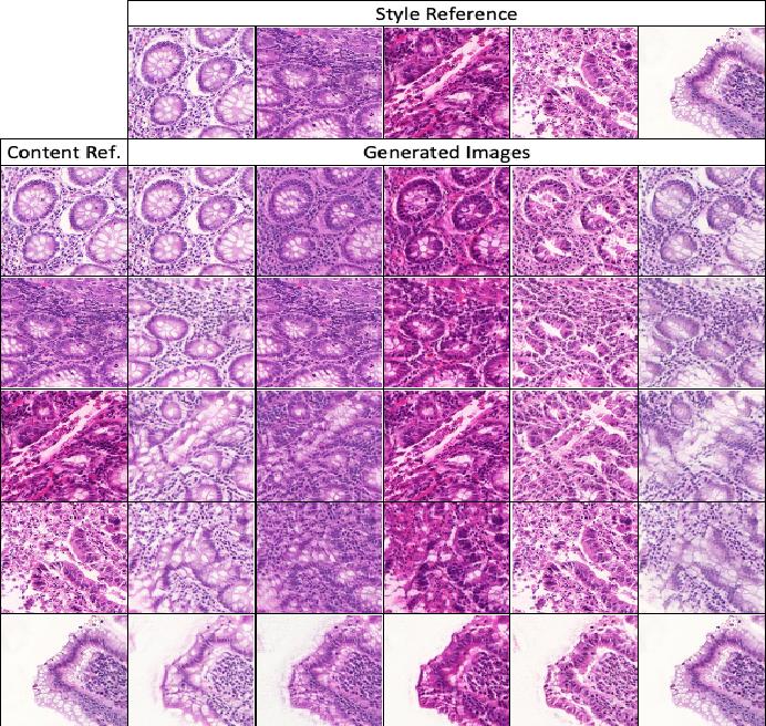 Figure 3 for Unlabeled Data Guided Semi-supervised Histopathology Image Segmentation