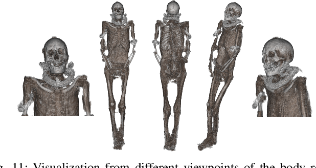 Figure 3 for Weakly Supervised Geodesic Segmentation of Egyptian Mummy CT Scans