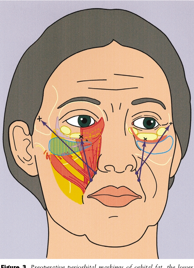 Figure 3 from Bidirectional lift of the anterior midcheek with Gore