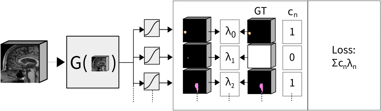 Figure 1 for Exploiting Clinically Available Delineations for CNN-based Segmentation in Radiotherapy Treatment Planning