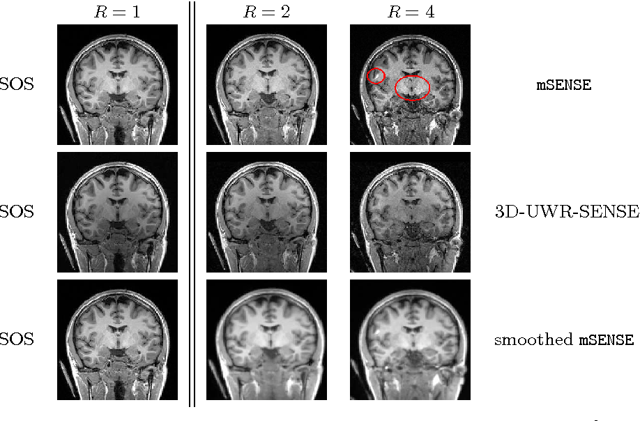 Figure 1 for Spatio-temporal wavelet regularization for parallel MRI reconstruction: application to functional MRI