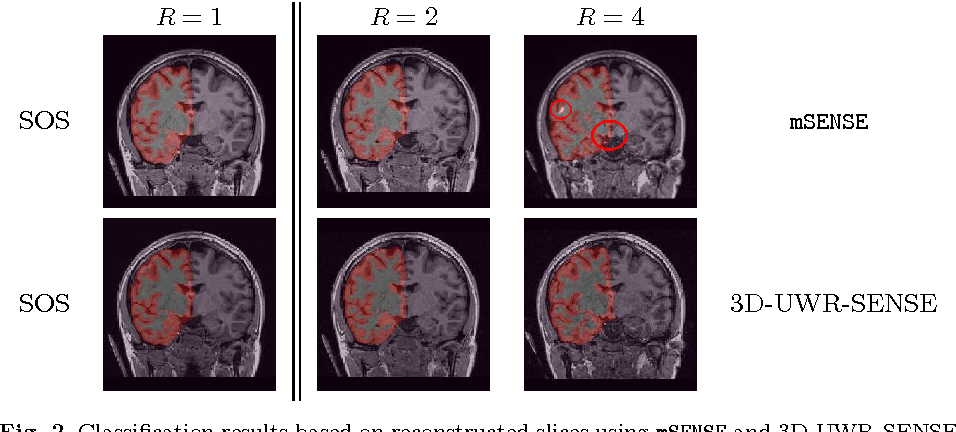 Figure 3 for Spatio-temporal wavelet regularization for parallel MRI reconstruction: application to functional MRI