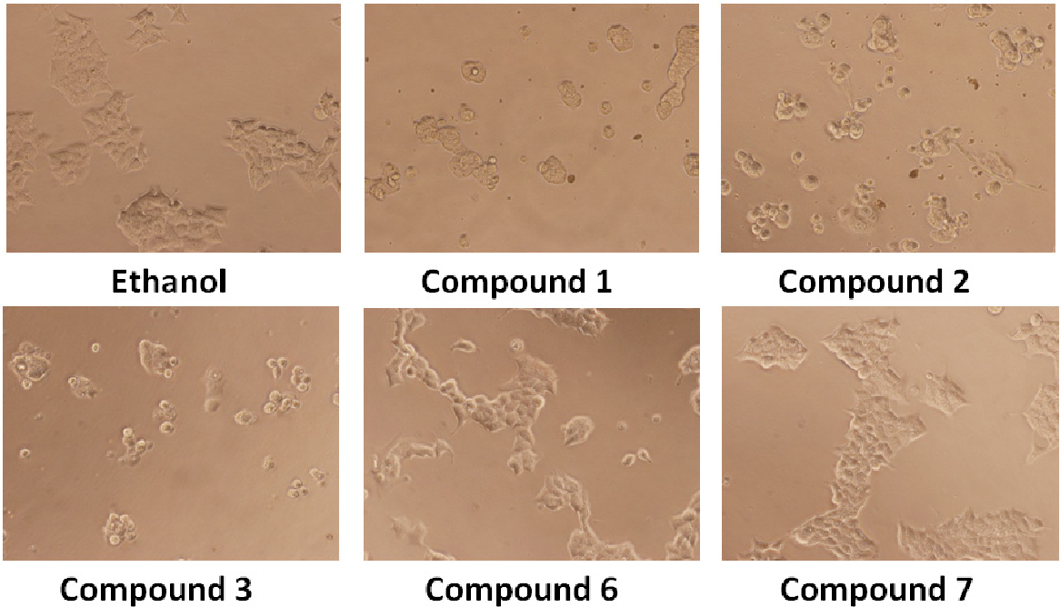 Figure 2. Effect of compounds on the morphology of the cells. After 24 h treatment morphological change of DU-145 cells observed under an inverted phase contrast microscope (200×).