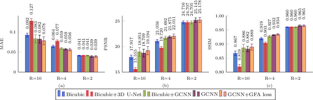 Figure 4 for Multifold Acceleration of Diffusion MRI via Slice-Interleaved Diffusion Encoding (SIDE)