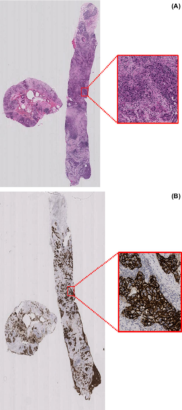 Figure 3 for Her2 Challenge Contest: A Detailed Assessment of Automated Her2 Scoring Algorithms in Whole Slide Images of Breast Cancer Tissues