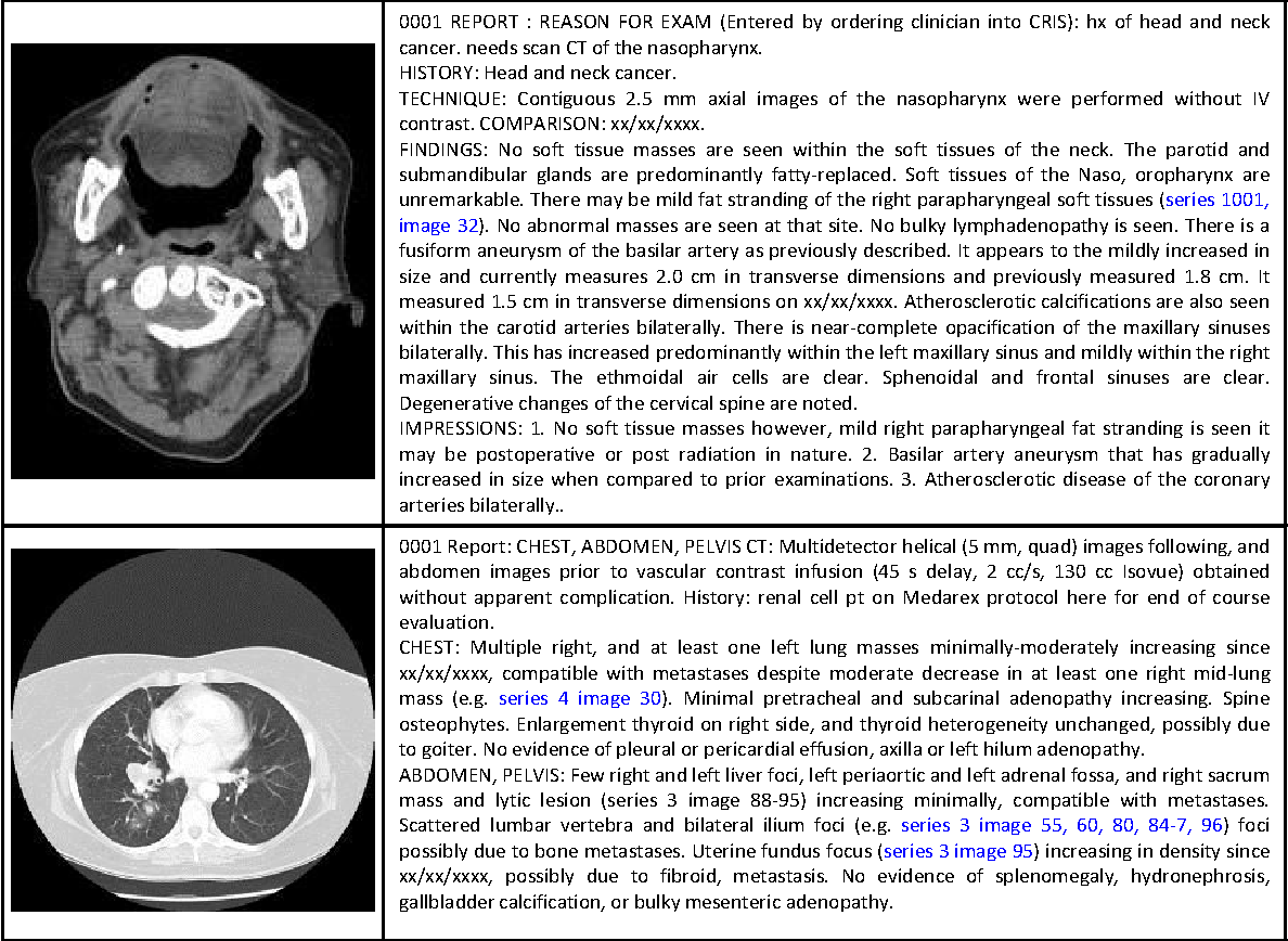 Figure 2 for Interleaved Text/Image Deep Mining on a Large-Scale Radiology Database for Automated Image Interpretation