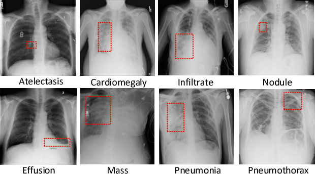 Figure 1 for Weakly Supervised Deep Learning for Thoracic Disease Classification and Localization on Chest X-rays