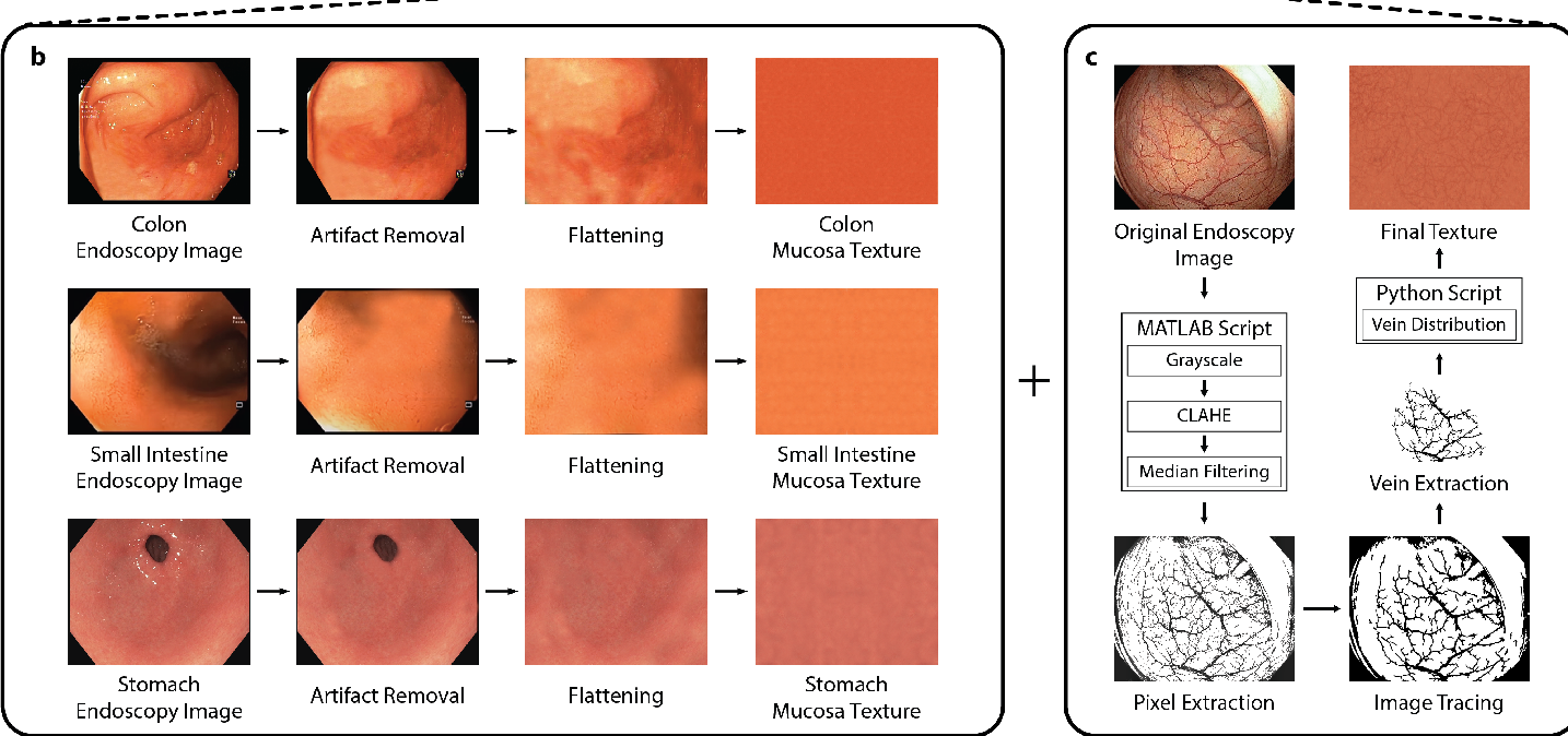 Figure 2 for VR-Caps: A Virtual Environment for Capsule Endoscopy