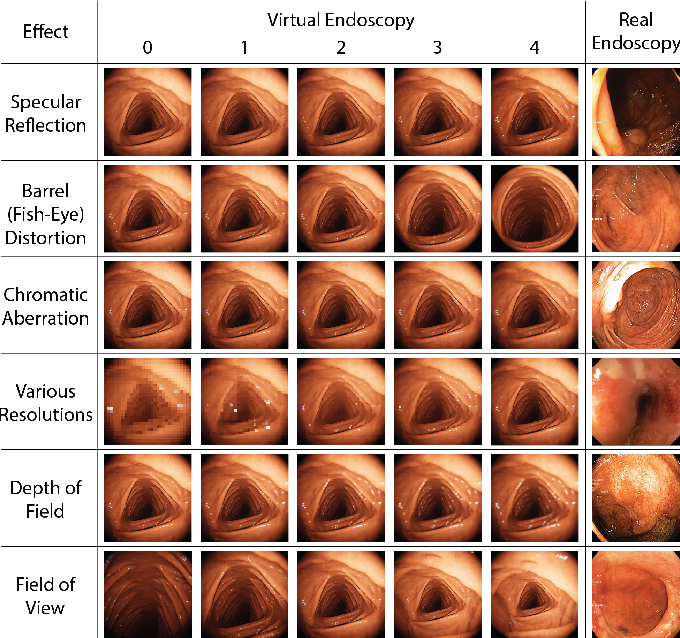 Figure 4 for VR-Caps: A Virtual Environment for Capsule Endoscopy
