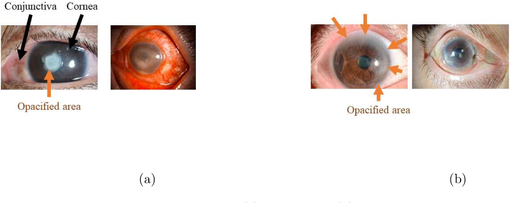 Figure 1 for Automated eye disease classification method from anterior eye image using anatomical structure focused image classification technique
