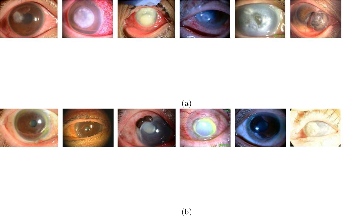 Figure 3 for Automated eye disease classification method from anterior eye image using anatomical structure focused image classification technique