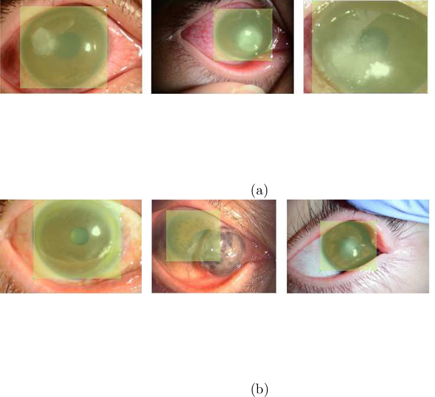 Figure 4 for Automated eye disease classification method from anterior eye image using anatomical structure focused image classification technique