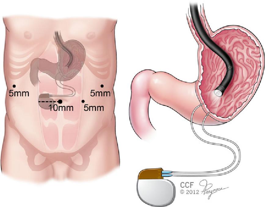 Image result for Gastric Electric Stimulators