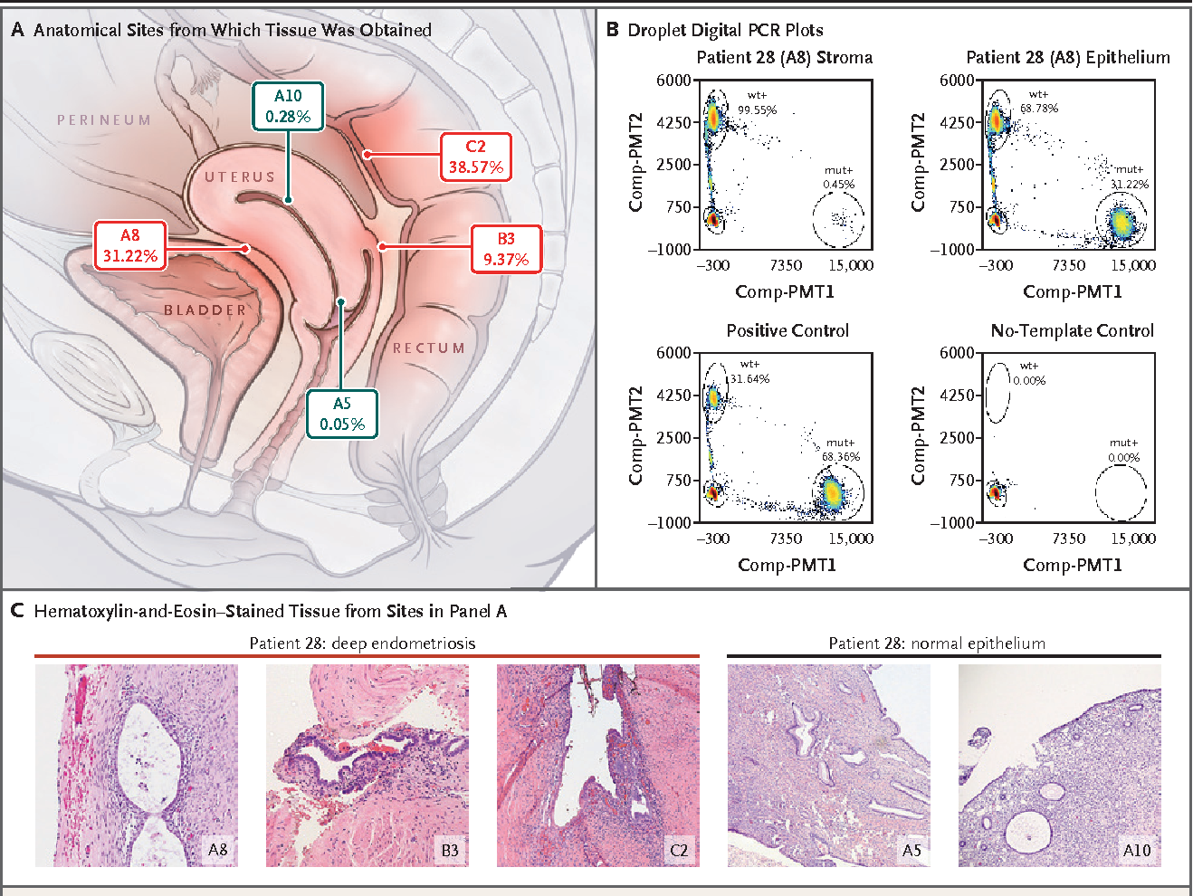 Figure 4. Co-Occurring and Anatomically Distinct Deep Infiltrating Endometriosis Lesions That Harbor Identical KRAS Mutations.