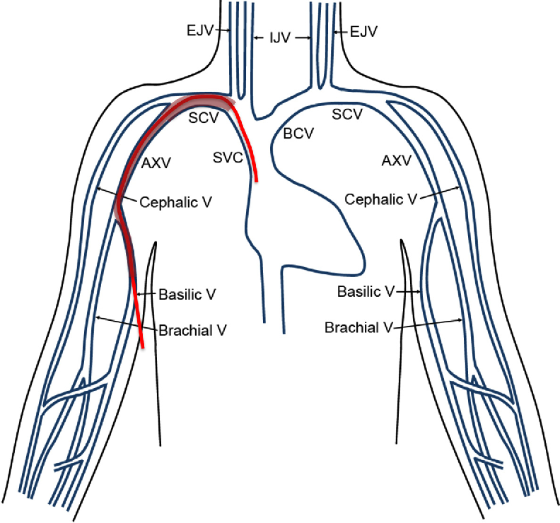 Upper Extremity Venous Diagram Collection Of Wiring Diagram