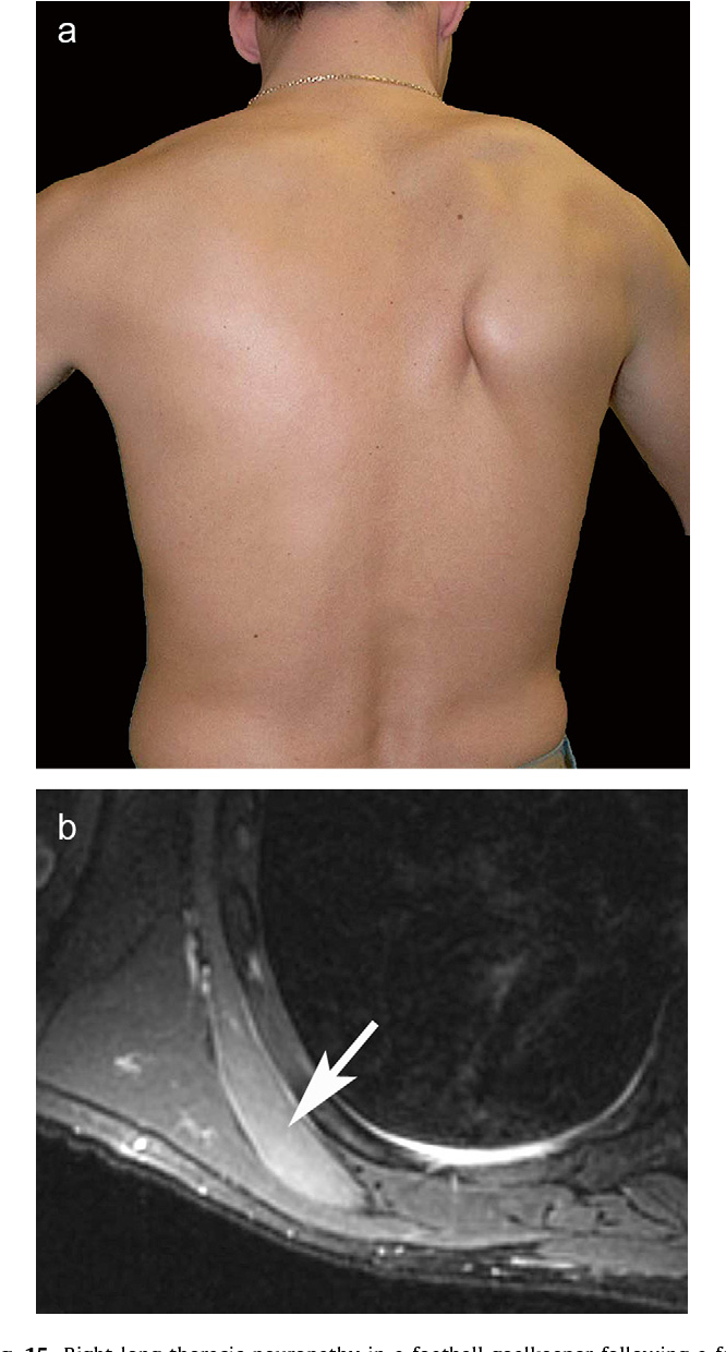 Figure 15 From The Nerves Around The Shoulder Semantic Scholar