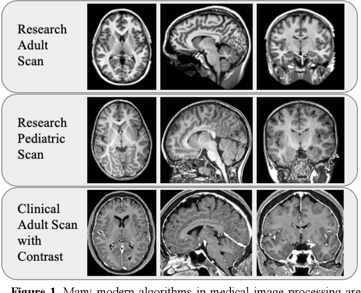Figure 1 for Generalizing Deep Whole Brain Segmentation for Pediatric and Post-Contrast MRI with Augmented Transfer Learning