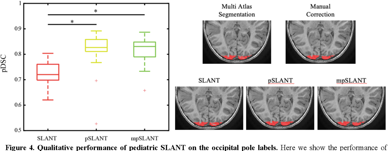 Figure 4 for Generalizing Deep Whole Brain Segmentation for Pediatric and Post-Contrast MRI with Augmented Transfer Learning