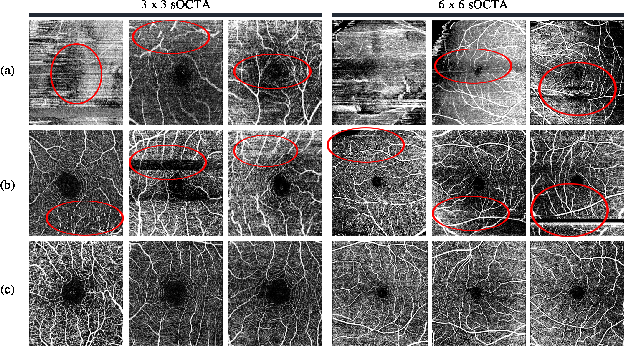 Figure 1 for A Deep Learning-based Quality Assessment and Segmentation System with a Large-scale Benchmark Dataset for Optical Coherence Tomographic Angiography Image