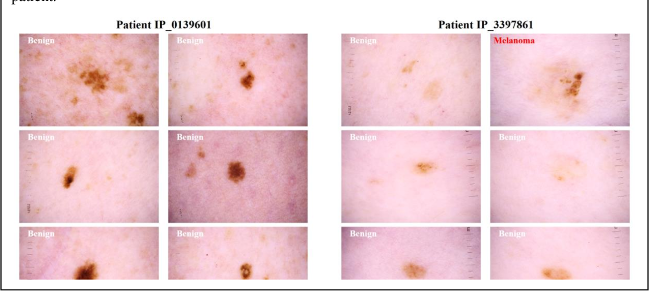 Figure 1 for A Patient-Centric Dataset of Images and Metadata for Identifying Melanomas Using Clinical Context