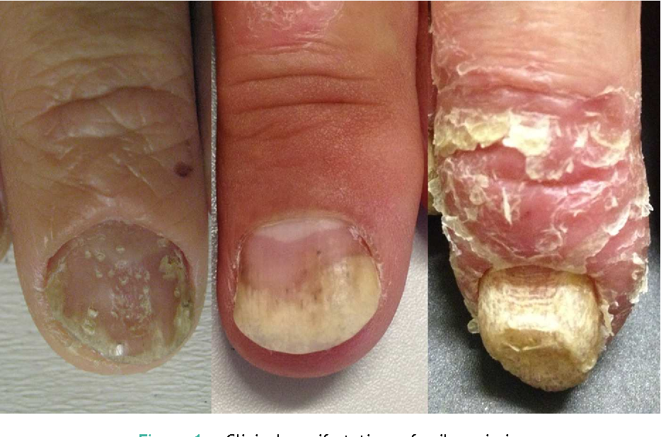 Figure 1 from Nail psoriasis as a predictor of the development of ...