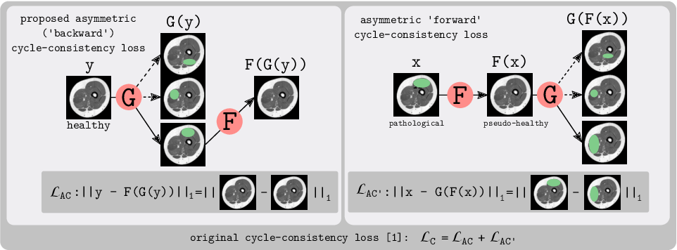 Figure 1 for An Asymetric Cycle-Consistency Loss for Dealing with Many-to-One Mappings in Image Translation: A Study on Thigh MR Scans