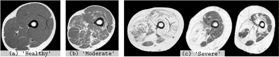 Figure 3 for An Asymetric Cycle-Consistency Loss for Dealing with Many-to-One Mappings in Image Translation: A Study on Thigh MR Scans