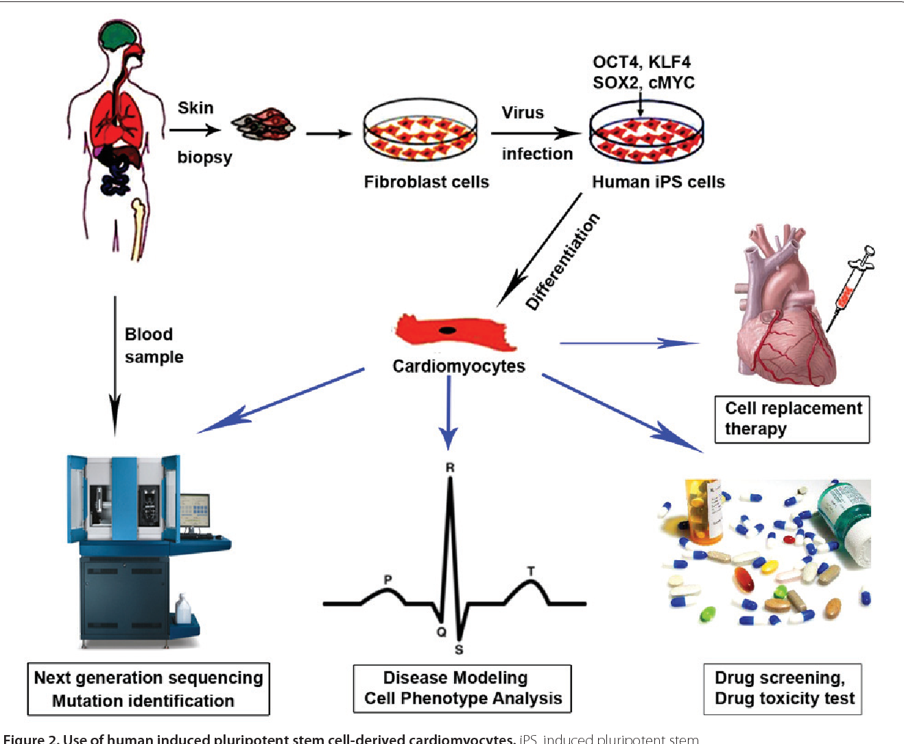 Uses of cardiomyocytes generated from induced pluripotent stem cells