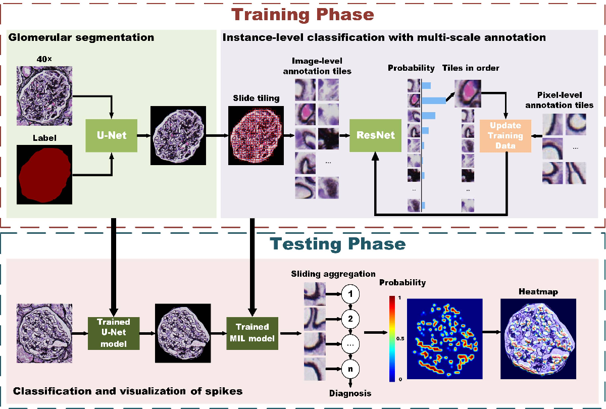 Figure 4 for MSA-MIL: A deep residual multiple instance learning model based on multi-scale annotation for classification and visualization of glomerular spikes