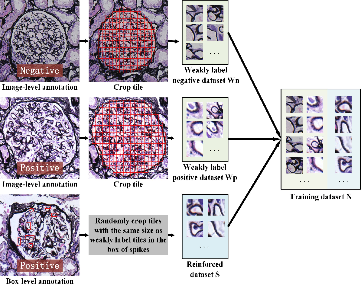 Figure 3 for MSA-MIL: A deep residual multiple instance learning model based on multi-scale annotation for classification and visualization of glomerular spikes