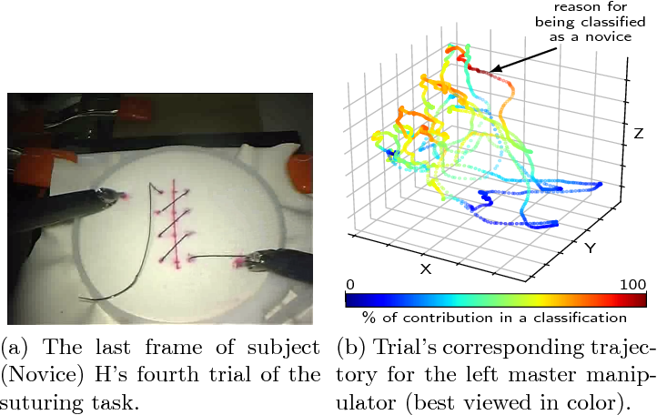 Figure 3 for Evaluating surgical skills from kinematic data using convolutional neural networks