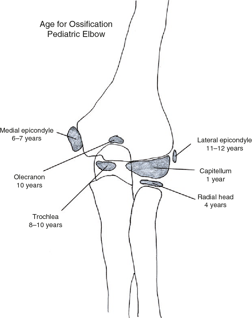 Pediatric Elbow Fractures - Semantic Scholar