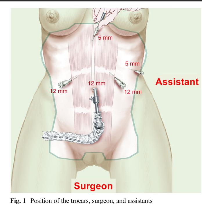 Laparoscopic reversal of mini-gastric bypass to original anatomy for ...