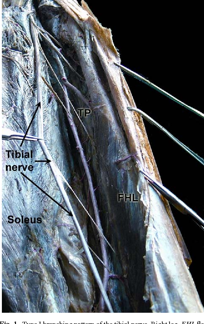 Fig. 1 Type I branching pattern of the tibial nerve. Right leg, FHL Xexor hallucis longus; TP tibialis posterior