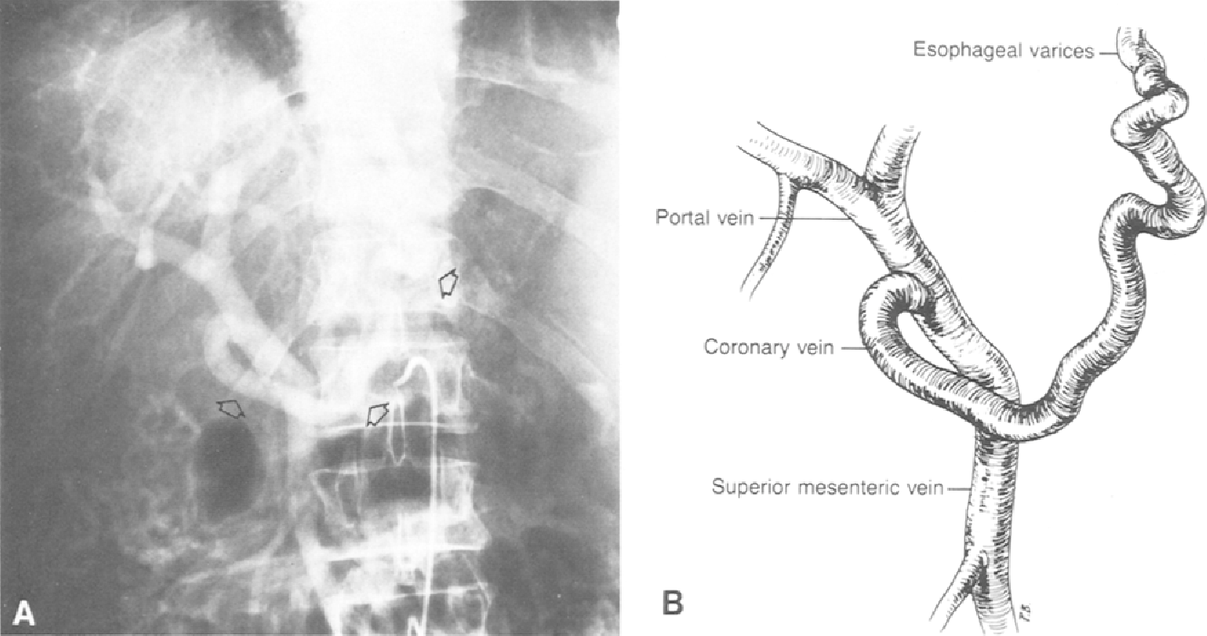 Figure 1 From Anterolateral Left Gastric Coronary Vein An