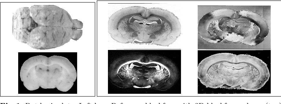 Figure 1 for Towards ultra-high resolution 3D reconstruction of a whole rat brain from 3D-PLI data