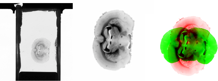 Figure 3 for Towards ultra-high resolution 3D reconstruction of a whole rat brain from 3D-PLI data