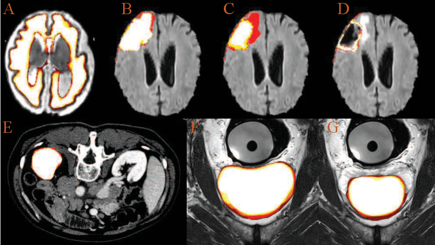 Figure 4 for Uncertainty Quantification in Medical Image Segmentation with Multi-decoder U-Net