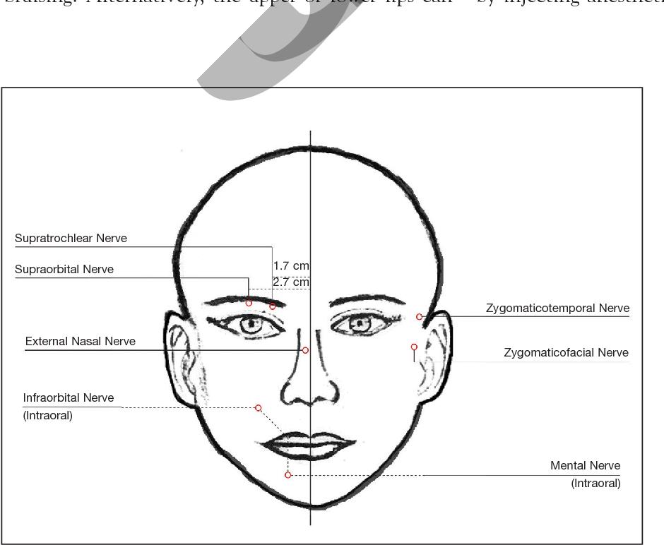 PDF] Local anesthetics in cosmetic dermatology  - Semantic