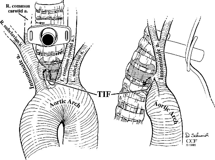 Tracheo Innominate Artery Fistula After Tracheostomy Semantic Scholar