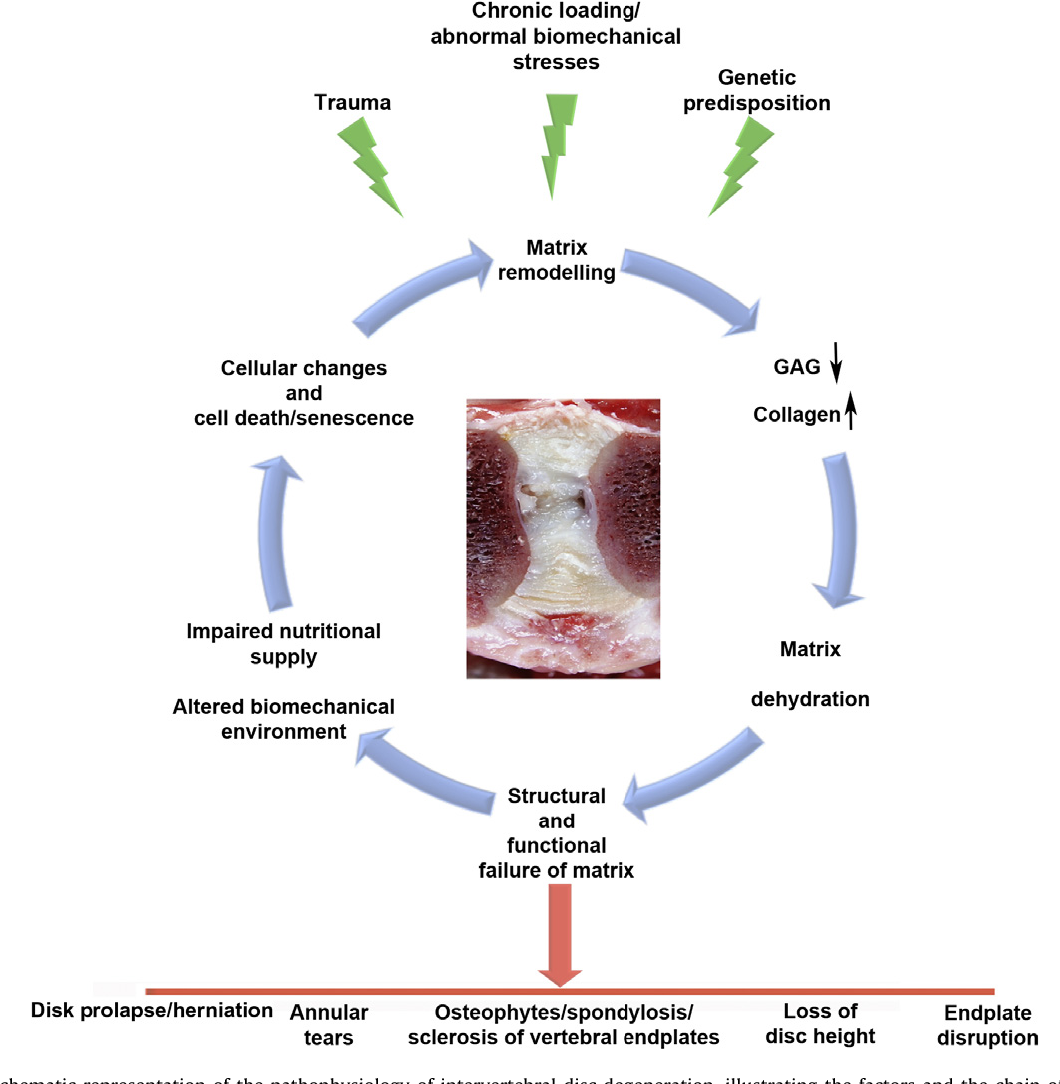 Figure 6 from Intervertebral disc degeneration in the dog. Part 1 ...